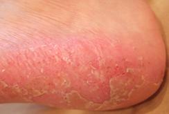 掌蹠膿疱症025