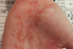 掌蹠膿疱症018