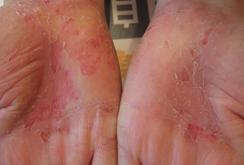 掌蹠膿疱症019
