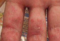 掌蹠膿疱症021