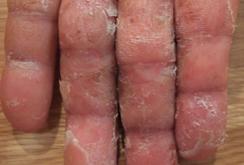 掌蹠膿疱症023