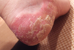 掌蹠膿疱症026