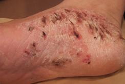 掌蹠膿疱症015