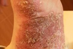 掌蹠膿疱症016