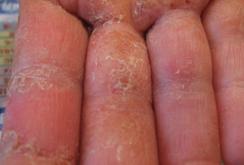 掌蹠膿疱症022
